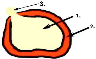 bandscheibenentzündung