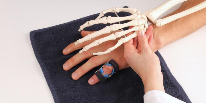 fingerkuppe abgetrennt heilung