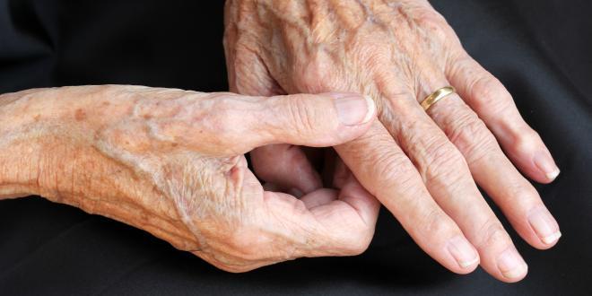 Kapselverletzungen und Sehnenverletzungen an Hand und Fingern