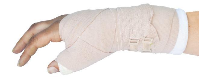 Handgelenksbruch