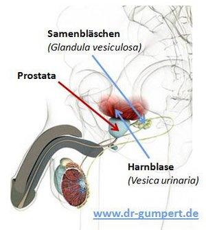 lymphabfluss prostata