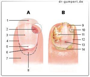 Die Behandlung gribka der Nägel in odinzowo