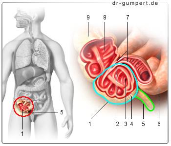 Dickdarmentzündung Operation