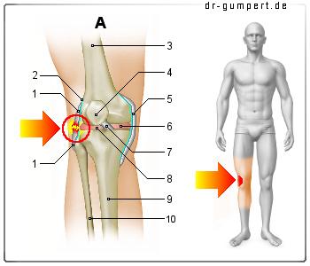 Außenbandriss Knie