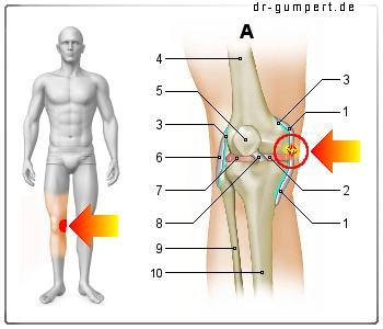 Innenbandriss Knie Dauer