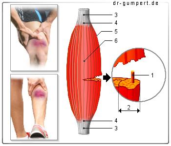 Oberschenkel Muskelfaserriss