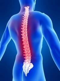 Die Kur der Osteochondrose das Medikamentöse