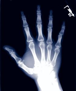 Das Serum für die Behandlung der Nägel