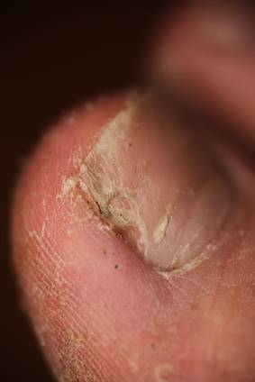 Onicholisis auf den Nägeln die Präparate für die Behandlung