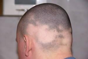Die Wiederherstellung des Haares des Mittels in den Apotheken