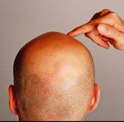 Die weiblichen sexuellen Hormone der Haarausfall