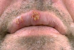 Herpes auf der Seite des Mundes