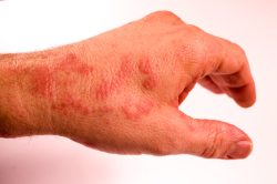 eczema on knees treatment