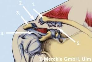 Bänderriss Schulter