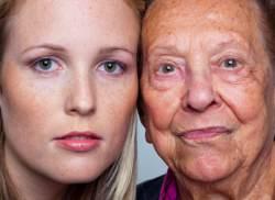 Altersflecken Woher Kommen Sie Und Was Hilft