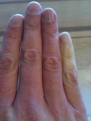 Blaue Hände Ursache
