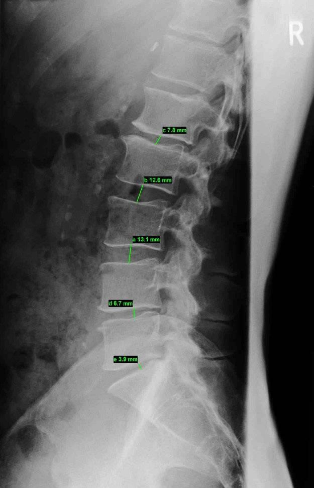 Röntgenbild degeneratives LWS Syndrom